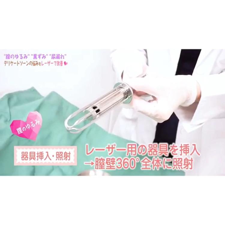 ゾーン レーザー デリケート 黒ずみ