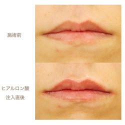 Lip HA